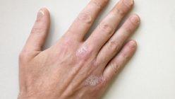 Eine Hand mit Neurodermitis