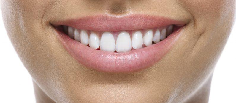 Nahaufnahmen von Zähnen